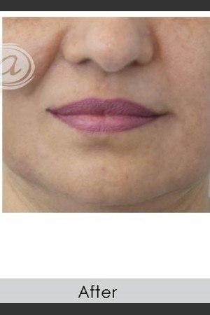 After Photo for Marionette Line Filler   - Annie Chiu, MD - ZALEA Before & After