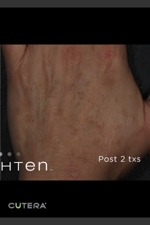 After Photo for Pigmented Lesions on Hand with Enlighten   - ZALEA Before & After