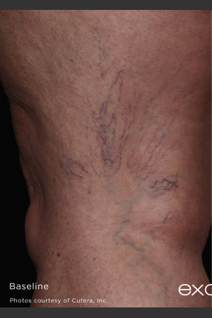 Before Photo for Back of Thigh Leg Vein Clearance    - ZALEA Before & After