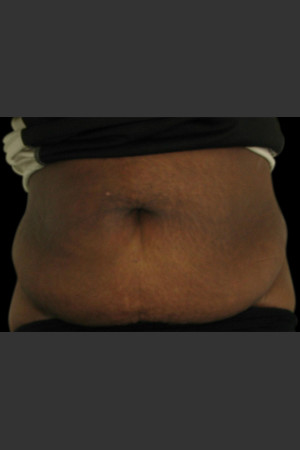 Before Photo for Body Contouring Treatment #115   - Lawrence Bass MD - ZALEA Before & After