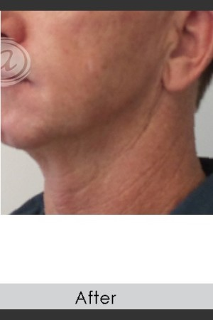 After Photo for Male Jawline Enhancement with Radiesse   - Annie Chiu, MD - ZALEA Before & After