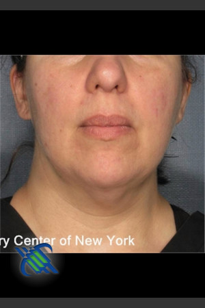 After Photo for Laser Liposuction Submental Fat Treatment   - Roy G. Geronemus, M.D. - ZALEA Before & After