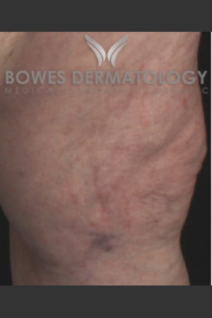 After Photo for Spider Vein Treatment   - Lawrence Bass MD - ZALEA Before & After