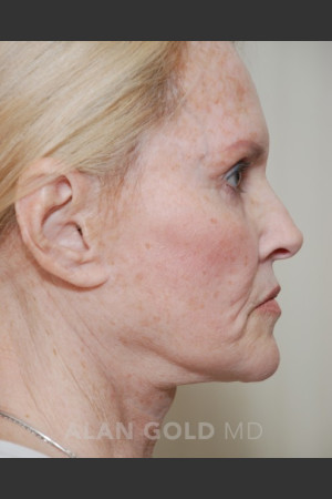 Before Photo for Rhytidectomy (Facelift) 1753 Side View   - Alan Gold MD - ZALEA Before & After