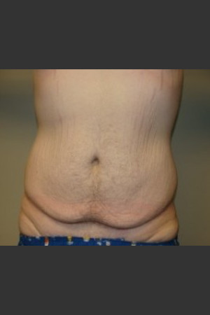 Before Photo for Belt Lipectomy 7986   - Sanjay Grover MD FACS - ZALEA Before & After