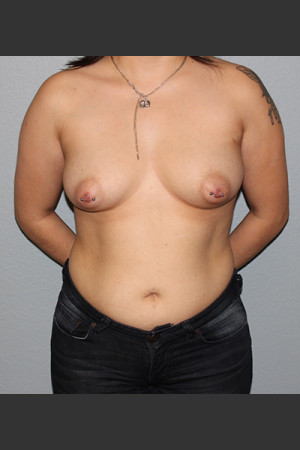 Before Photo for Breast Augmentation Case #1   - Bryan J. Correa, MD - ZALEA Before & After