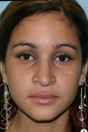 Before Photo for Rhinoplasty - Case 16   - Konstantin Vasyukevich, MD - ZALEA Before & After