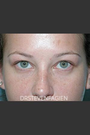 After Photo for Lower Eyelid Fat Removal - Patient 4   - Steven Fagien, MD - ZALEA Before & After