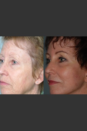 After Photo for Full Face Rejuvenation - Mark B. Taylor, M.D. - Prejuvenation