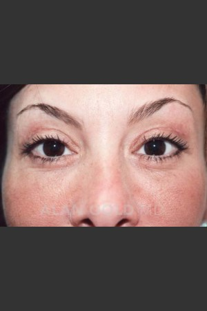 After Photo for Blepharoplasty 871   - Lawrence Bass MD - ZALEA Before & After