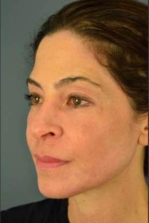 After Photo for C02 & Thermage Treatment #47   - Dr. David Amron - ZALEA Before & After