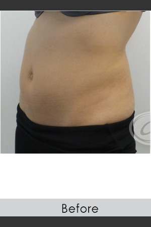 Before Photo for CoolSculpting+ Abdomen Treatment - Annie Chiu, MD - Prejuvenation