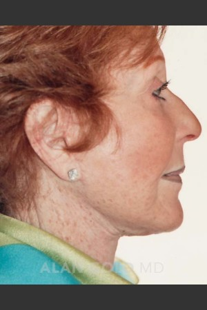After Photo for Rhytidectomy (Facelift) 161 Side View - Alan Gold MD - Prejuvenation