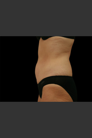 After Photo for Body Contouring Treatment #110 -  - Prejuvenation