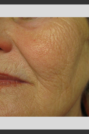 After Photo for Profound Smooth Treatment: Volumize Cheeks   - ZALEA Before & After