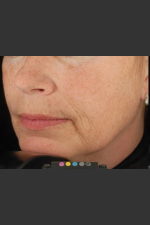 Before Photo for Botox Dermal Fillers and Pigment Removal    - Brian D. Zelickson, M.D. - ZALEA Before & After