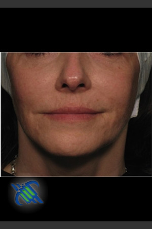After Photo for Facial Laxity of Lower Face with Profound   - Roy G. Geronemus, M.D. - ZALEA Before & After