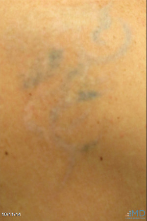 After Photo for Picosure Laser Tattoo Removal   - Robert Weiss, M.D., F.A.A.D., F.A.C.Ph - ZALEA Before & After