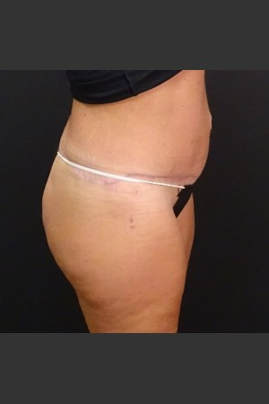 After Photo for Circumferential Body Lift Case #1   - Gallaher Plastic Surgery & Spa MD - ZALEA Before & After