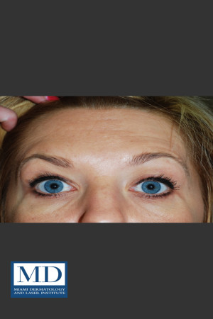 After Photo for Neurotoxin Treatment of Forehead 130   - Jill S. Waibel, MD - ZALEA Before & After
