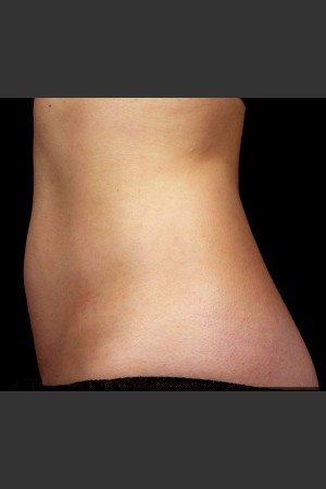 After Photo for SculpSure Abdomen   - Lawrence Bass MD - ZALEA Before & After