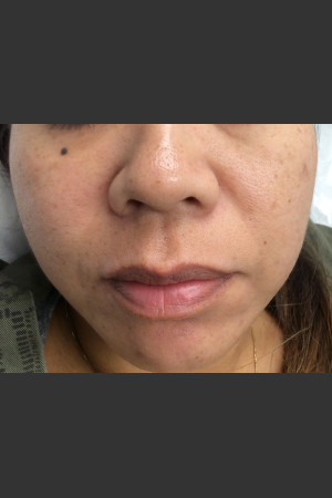 After Photo for IPL Photofacial  - Janell Ocampo - Prejuvenation