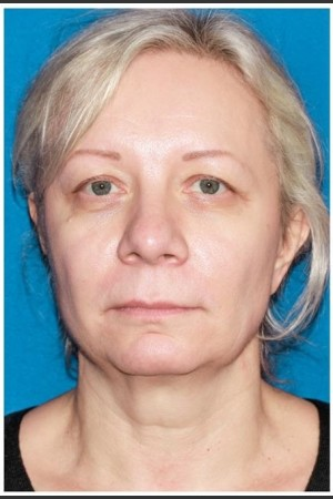 Before Photo for Facelift - Case 8   - Konstantin Vasyukevich, MD - ZALEA Before & After