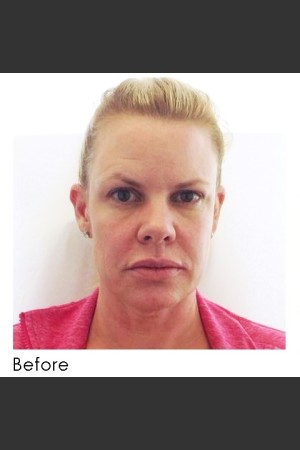 Before Photo for Sculptra    - Annie Chiu, MD - ZALEA Before & After