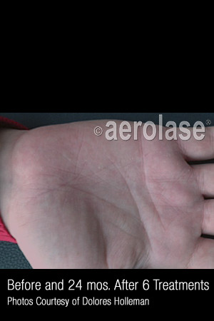 After Photo for Treatment of Psoriasis #335   - ZALEA Before & After