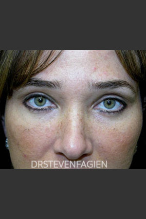 After Photo for Upper and Lower Blepharoplasty - Patient 6   - Steven Fagien, MD - ZALEA Before & After