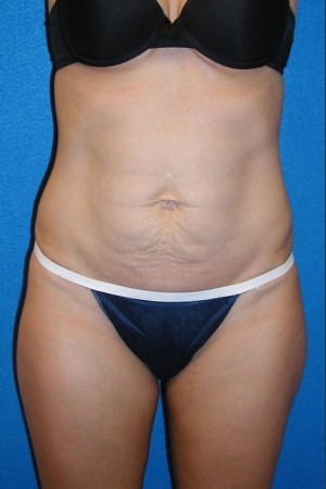 Before Photo for Tummy Tuck Case #2   - South Coast Plastic Surgery - ZALEA Before & After