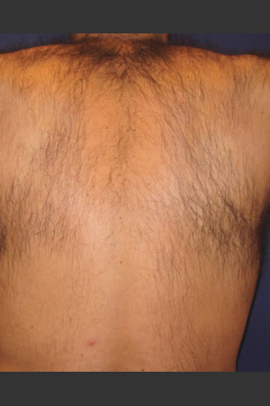 Before Photo for Laser Hair Removal   - James Newman - ZALEA Before & After