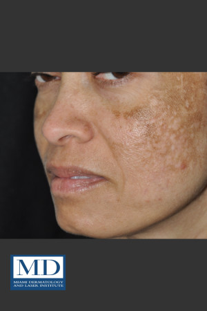 Before Photo for Melasma Face Treatment 117   - Jill S. Waibel, MD - ZALEA Before & After