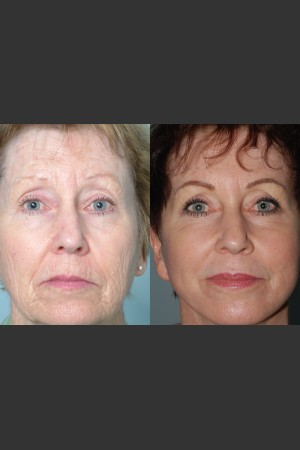 Before Photo for Full Face Rejuvenation - Mark B. Taylor, M.D. - Prejuvenation