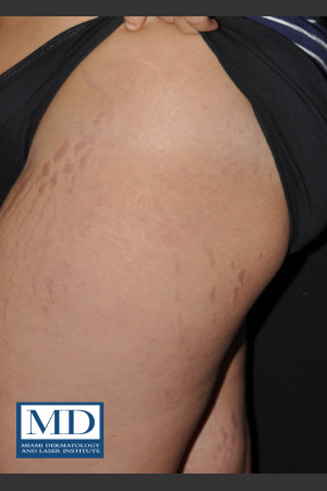 After Photo for Striae Treatment 127 - Jill S. Waibel, MD - Prejuvenation