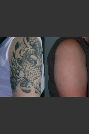 Before Photo for Tattoo Removal   - Mark B. Taylor, M.D. - ZALEA Before & After