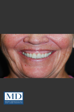 Before Photo for Neurotoxin Gummy Smile 129   - Jill S. Waibel, MD - ZALEA Before & After