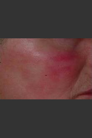 After Photo for IPL Treatment #19 - Harvey H. Jay, M.D. - Prejuvenation