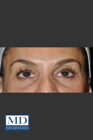 Before Photo for Midfacial Filler 136   - Jill S. Waibel, MD - ZALEA Before & After