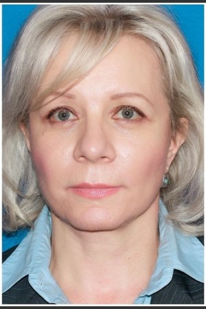 After Photo for Facelift - Case 8   - Konstantin Vasyukevich, MD - ZALEA Before & After