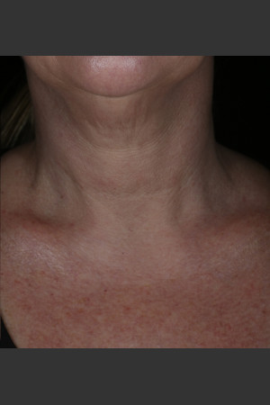 After Photo for Alastin Skincare Restorative Neck Complex with TriHex Technology®   - ZALEA Before & After