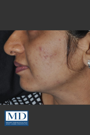 Before Photo for Post Inflammatory Hyperpigmentation 120   - Jill S. Waibel, MD - ZALEA Before & After