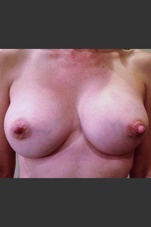 After Photo for Dr. Palmer Breast Augmentation 01    - Shane Palmer - ZALEA Before & After