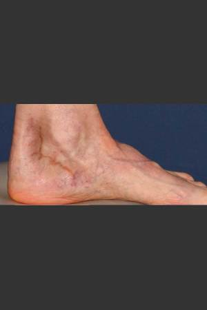 Before Photo for Treatment of Pigmented Lesion on Foot   - Lawrence Bass MD - ZALEA Before & After