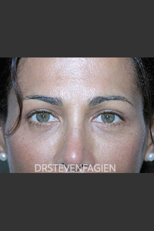 After Photo for Blepharoplasty - Patient 2   - Steven Fagien, MD - ZALEA Before & After