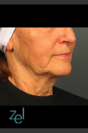 Before Photo for Lower Face Ultherapy & Dermal Fillers - Brian D. Zelickson, M.D. - Prejuvenation