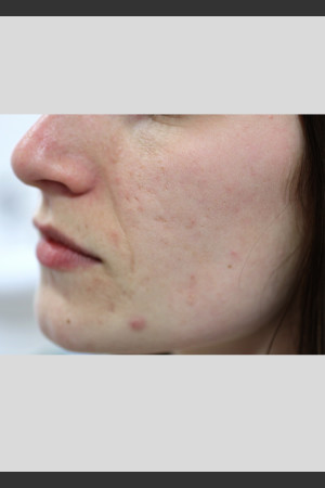 Before Photo for Sublative Rejuvenation Treatment   - ZALEA Before & After