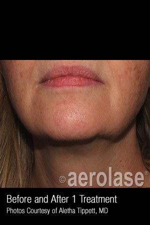 Before Photo for Skin Tightening #347   - ZALEA Before & After