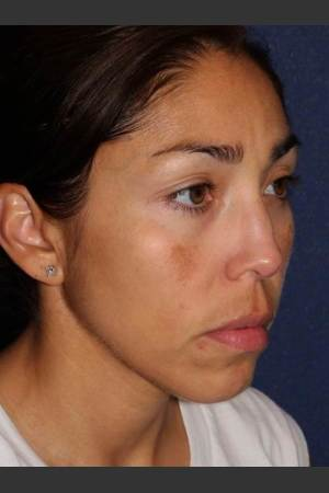 After Photo for Facial Pigmentation Removal   - Lawrence Bass MD - ZALEA Before & After