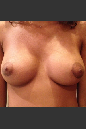 After Photo for Dr. Palmer Breast Augmentation 02 - Shane Palmer - Prejuvenation
